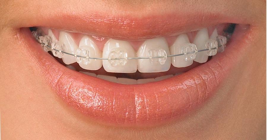 Trường hợp nào nên niềng răng?