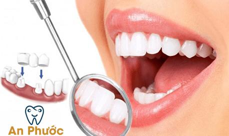 So sánh bọc răng sứ và mặt dán sứ Veneer cái nào tốt hơn