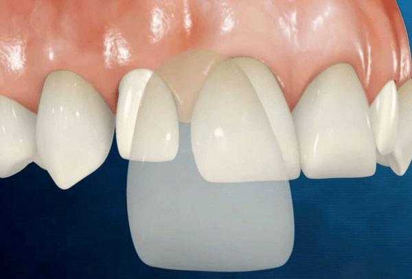 Bọc Răng Sứ Không Cần Mài Răng Được Không ?