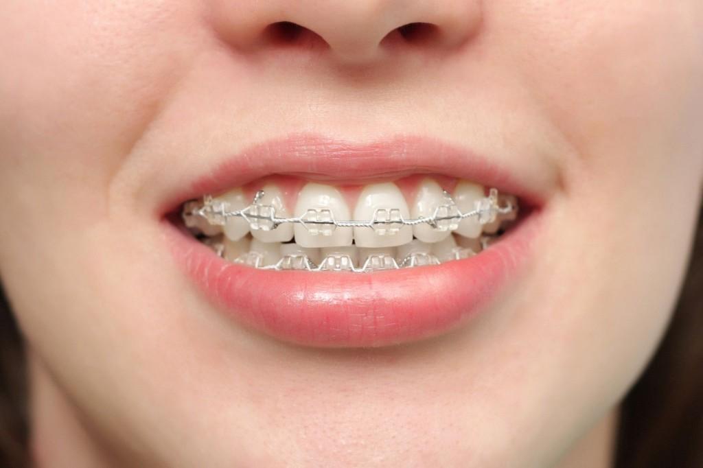 Nên niềng răng trong trường hợp nào để mang lại hiệu quả?