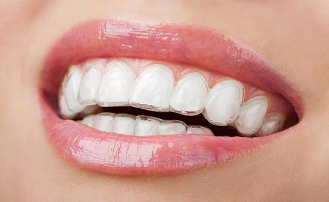 Phương pháp niềng răng không mắc cài
