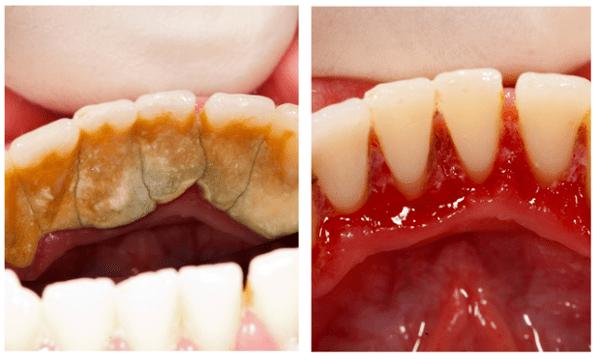 Hình ảnh trước và sau khi lấy cao răng