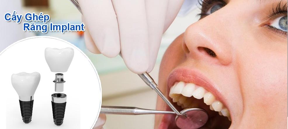 Thời điểm cấy ghép răng Implant khi nào là tốt nhất?