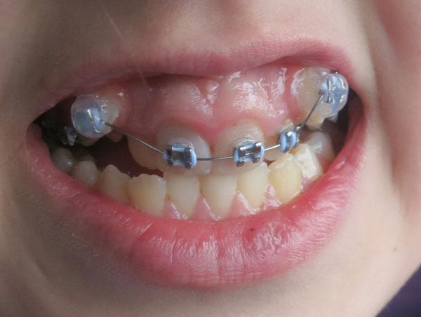 Niềng răng 1 hàm cho những trường hợp nào?
