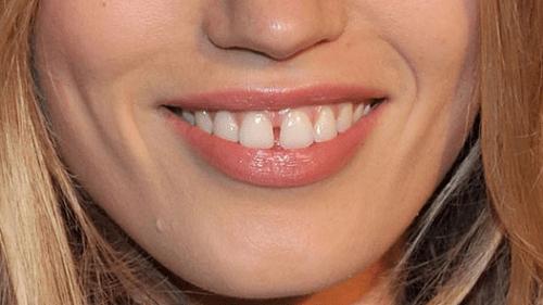 Răng thưa có bọc răng sứ được không?