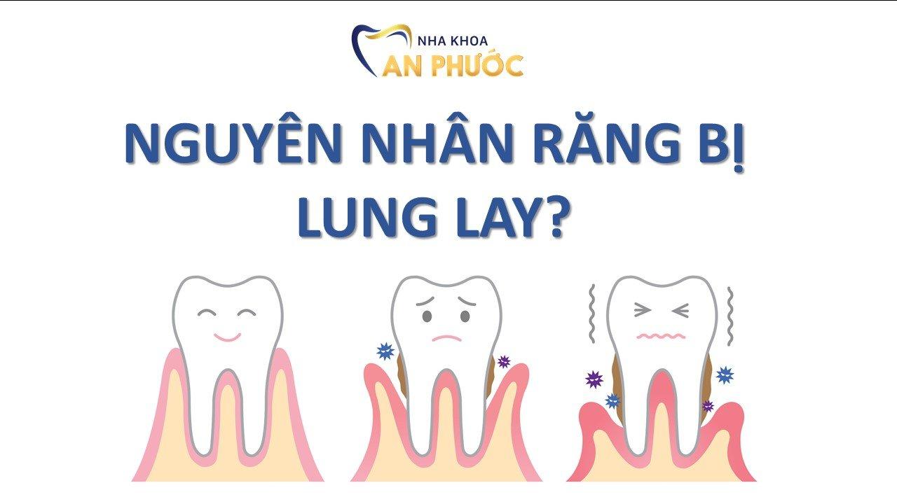 Nguyên nhân khiến răng bị yếu đi và lung lay