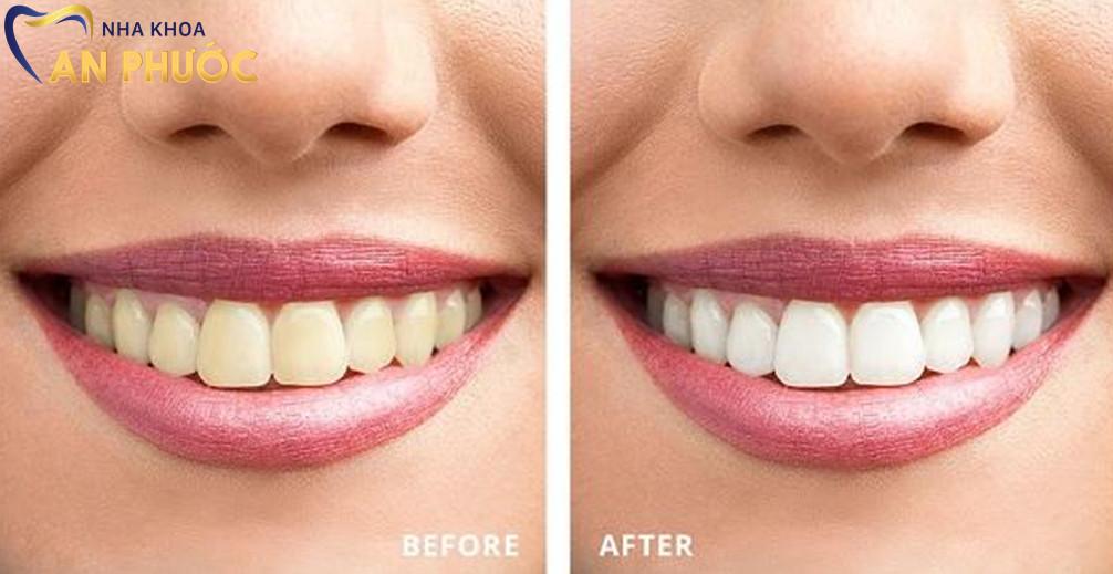 Tẩy răng có gây đau nhức và ảnh hưởng đến lợi hay không