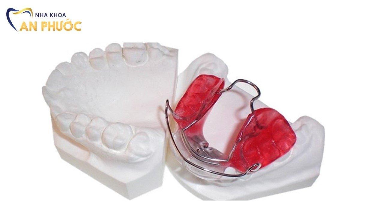 Phương pháp niềng răng với khí cụ tháo lắp