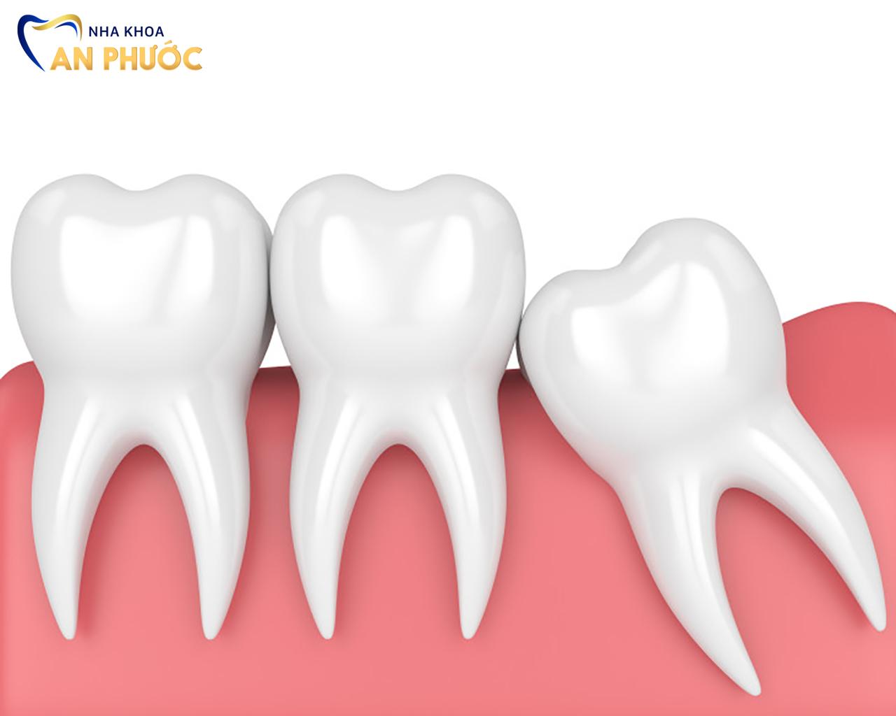 Nhổ răng khôn nếu những cơn đau nhức kéo dài
