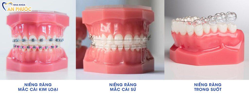 Các phương pháp niềng răng tại nha khoa An Phước
