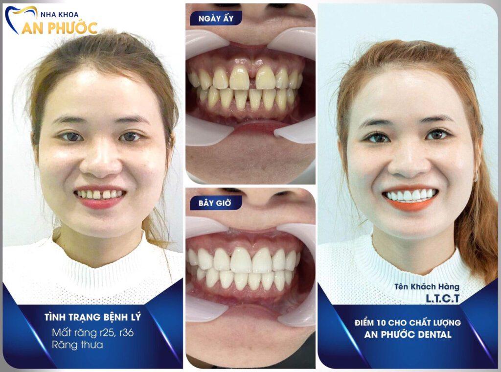 Khách hàng bọc răng sứ tại Nha Khoa An Phước
