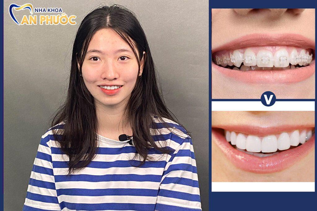 Các tiêu chí lựa chọn địa chỉ niềng răng tại Tân An, Long An