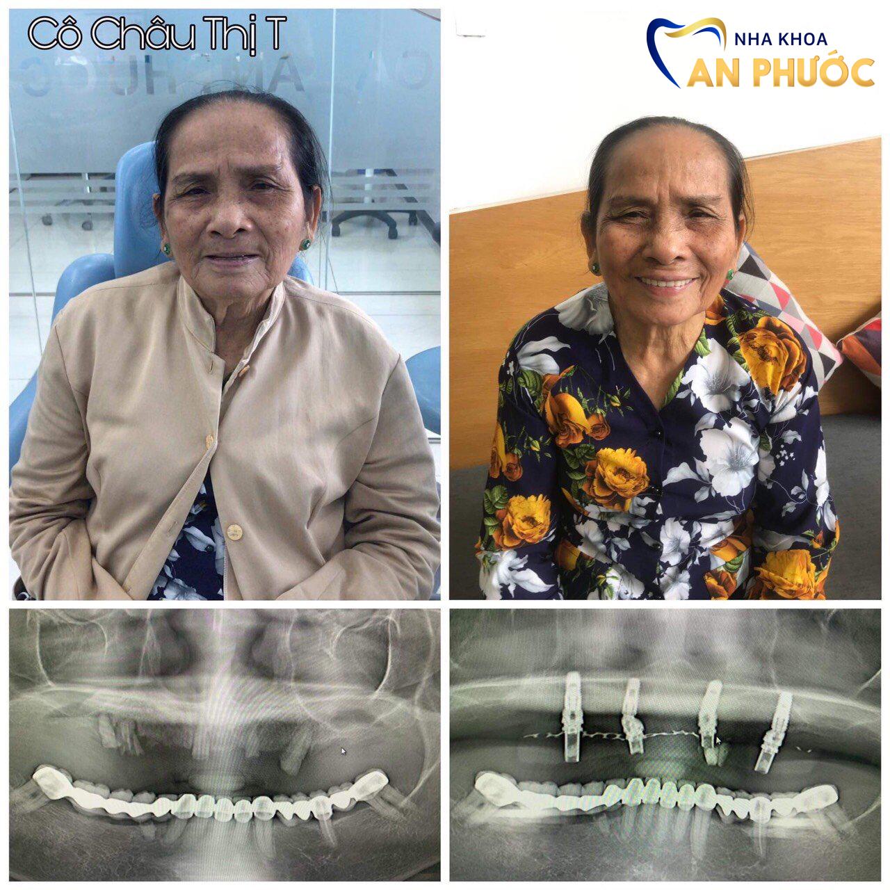Khách hàng C.T.T trồng răng Implant tại nha khoa An Phước.