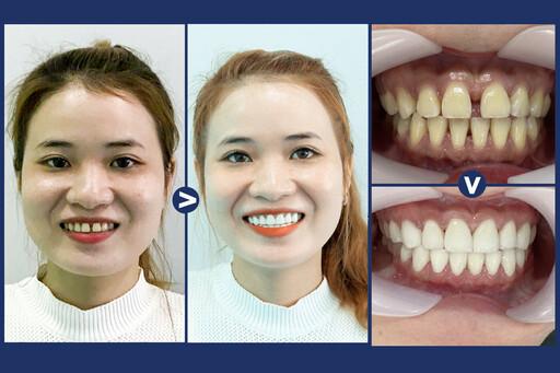 Hình ảnh các khách hàng bọc răng sứ tại Nha Khoa An Phước