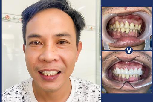 Khách hàng bọc răng sứ trước và sau tại nha khoaAn Phước