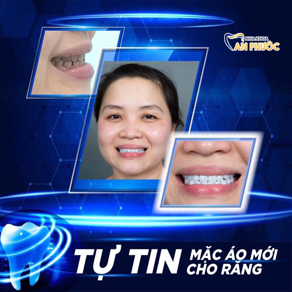 Hình ảnh khách hàng dán veneer tại nha khoa An Phước