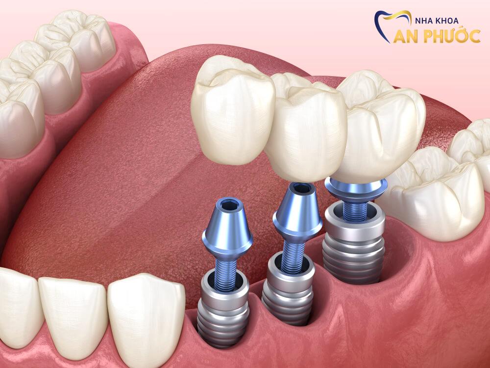 Trồng răng Implant là phương pháp phục hình răng hiện đại nhất hiện nay.