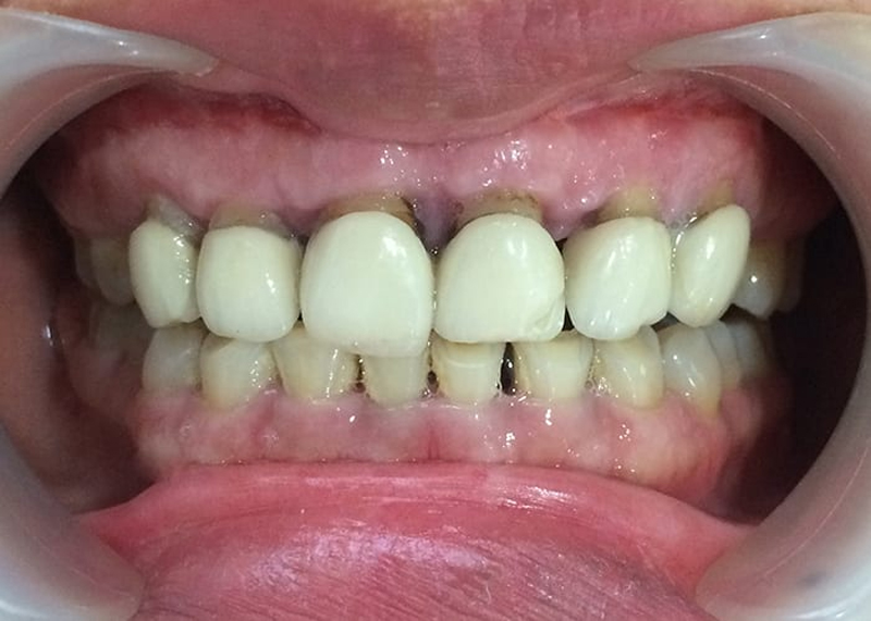 Bọc răng sứ giá rẻ tiềm ẩn nhiều nguy cơ ảnh hưởng đến sức khỏe răng miệng cũng như tính thẩm mỹ.
