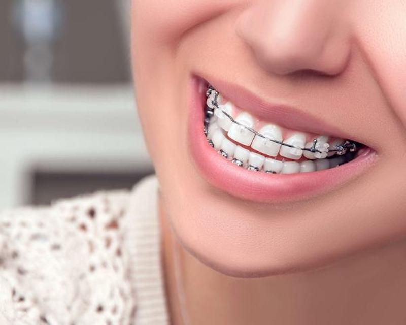 Niềng răng giá rẻ sẽ khiến bạn đối diện với nhiều biến chứng nguy hiểm.