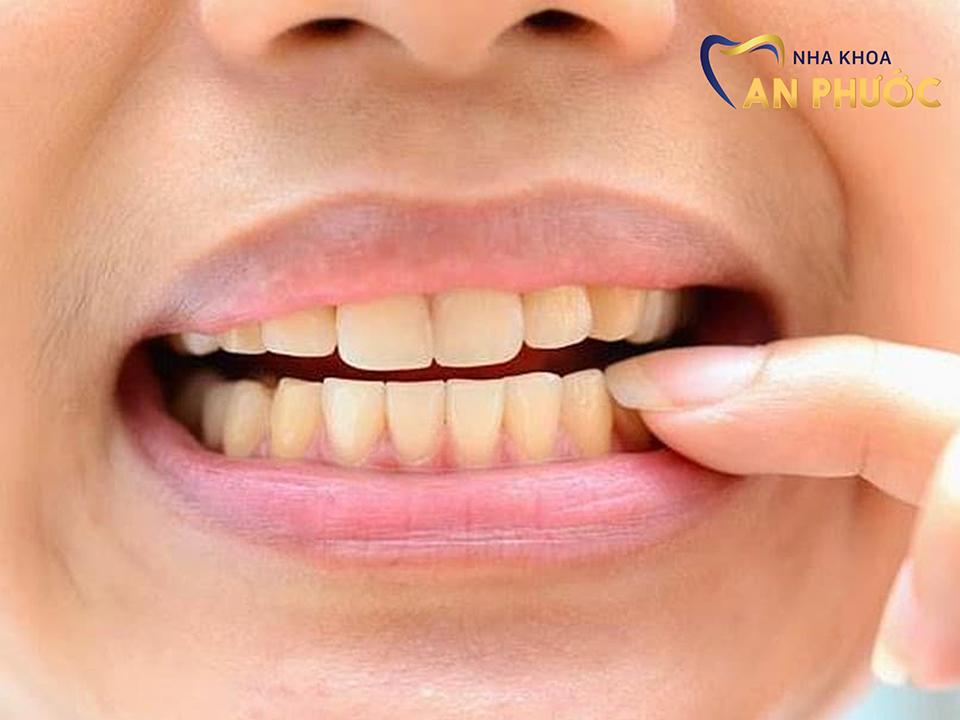 Tẩy trắng răng là phương pháp cải thiện màu răng phổ biến hiện nay.