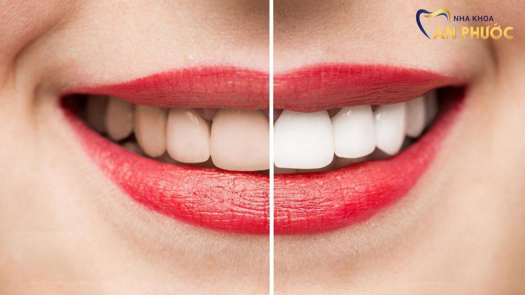 Tẩy trắng răng tại Long An giá bao nhiêu?