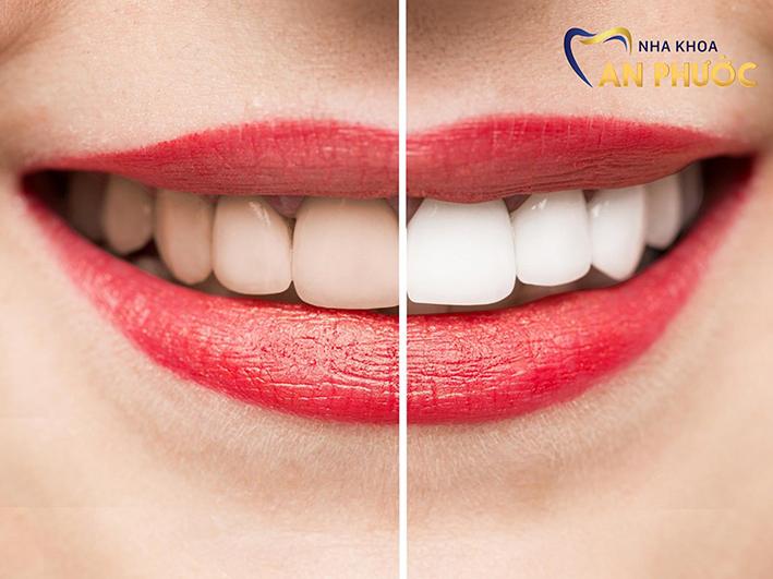 Phương pháp tẩy trắng răng giúp bạn sở hữu một hàm răng đều màu, trắng sáng, cải thiện thẩm mỹ nụ cười.