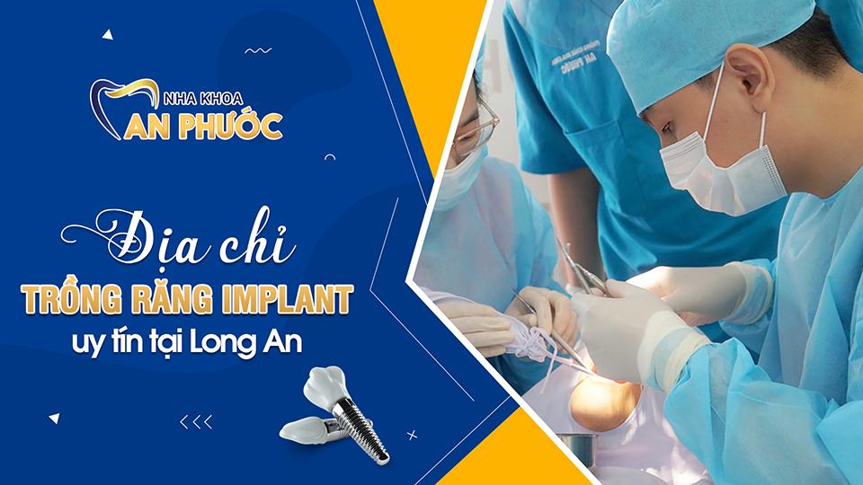 Trung tâm trồng răng Implant uy tín tại Long An