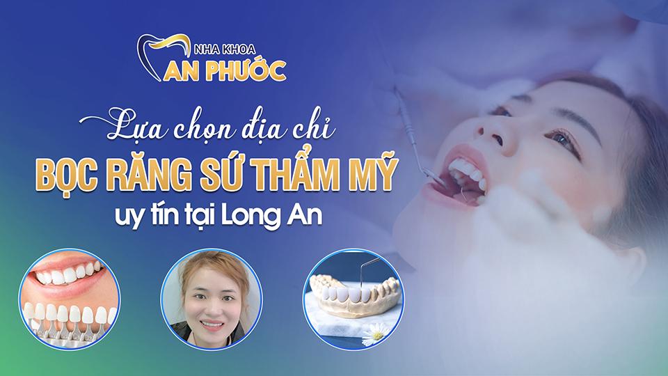 Địa chỉ bọc răng sứ thẩm mỹ uy tín tại Long An