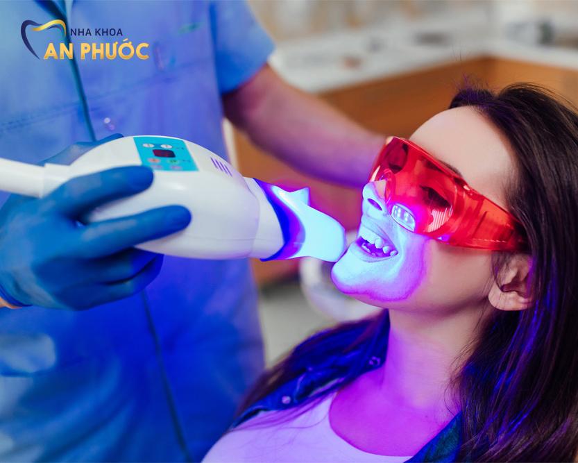 Tẩy trắng răng bằng công nghệ Laser Whitening mang hiệu quả nhanh chóng, trắng sáng bật tone rõ rệt ngay sau khi thực hiện.